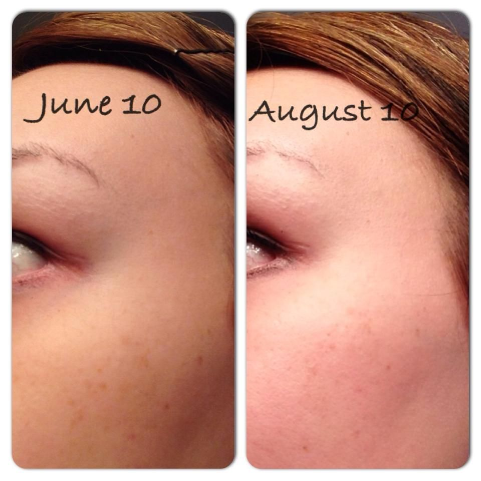 Nerium AD reviews, photos, ingredients - Makeupalley