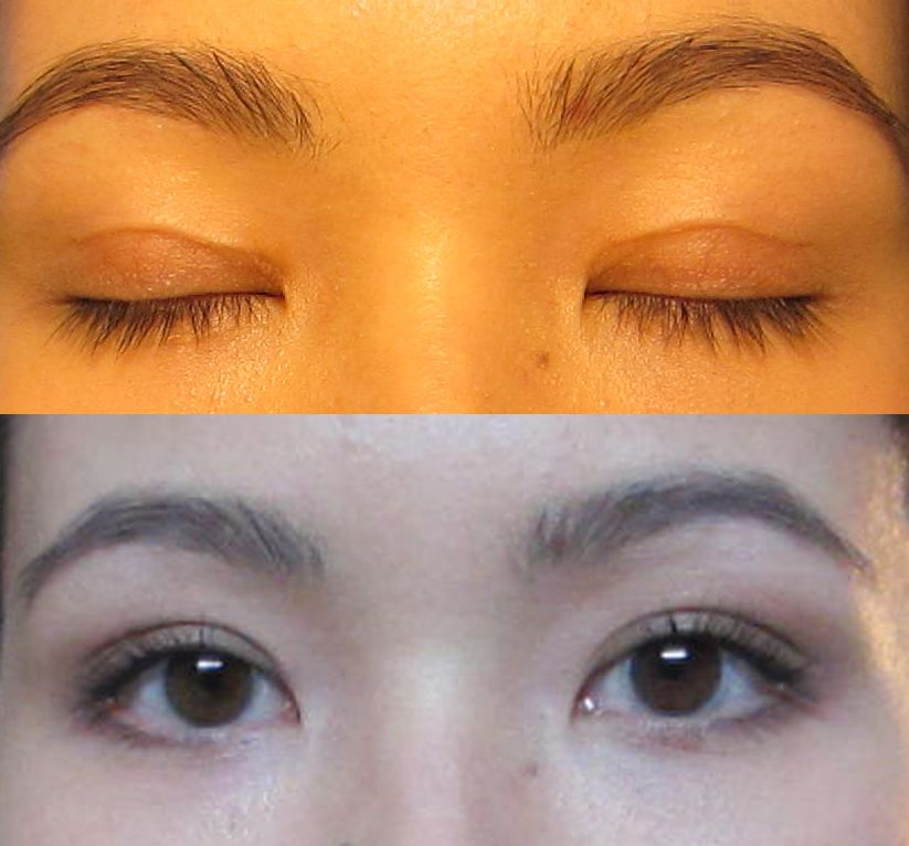 Wonder Eyelid Tape Extra reviews, photos, ingredients - MakeupAlley