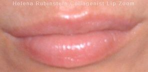 Collagenist Lip Zoom